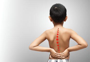 Центр здоров'я Solard - Нестабільність хребетного стовпа у дитини - 29