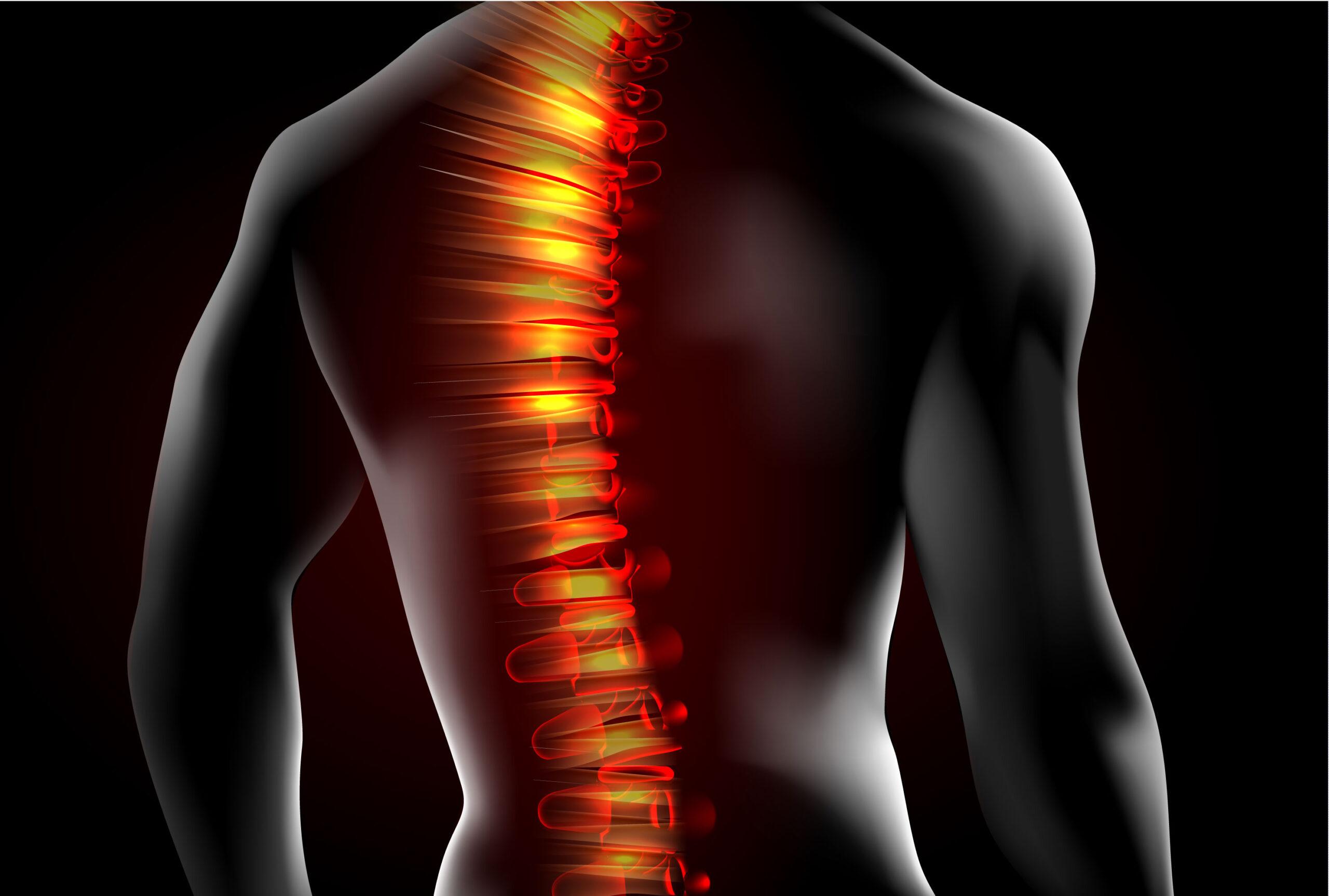 Центр здоров'я Solard - Боль в спине - 3
