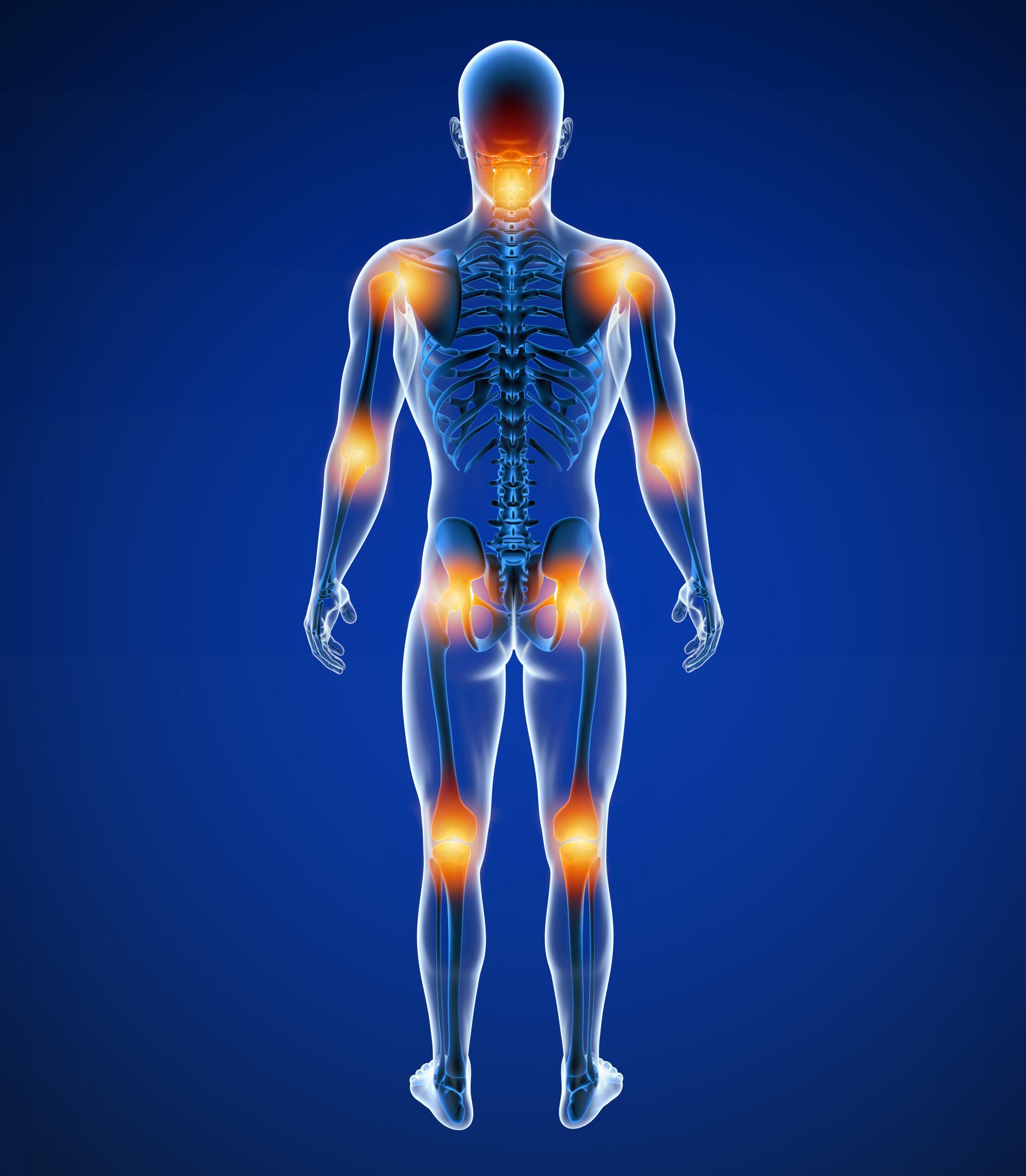 Центр здоров'я Solard - Остеоартроз - 1