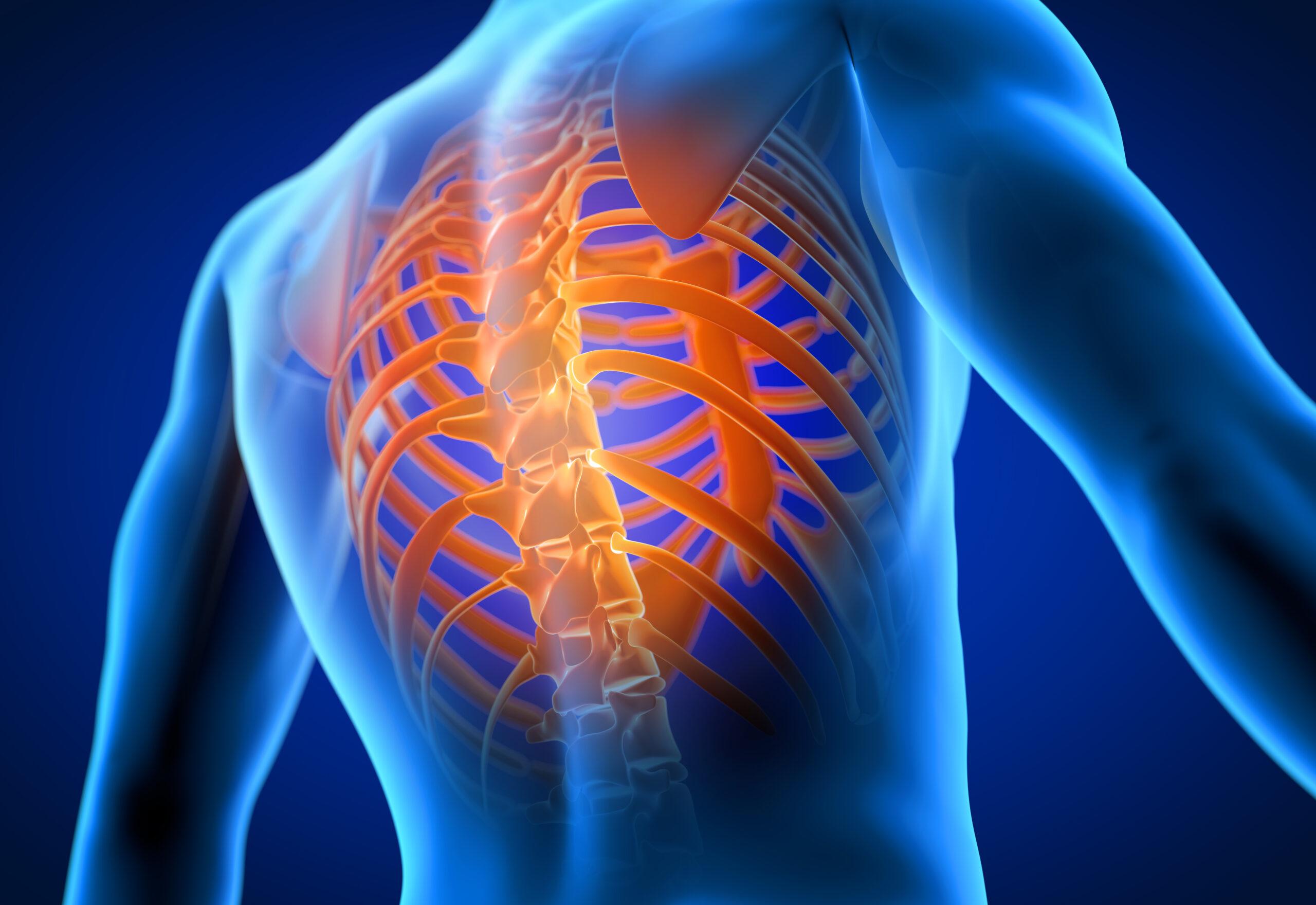 Центр здоров'я Solard - Кіфоз грудного відділу хребта - 1