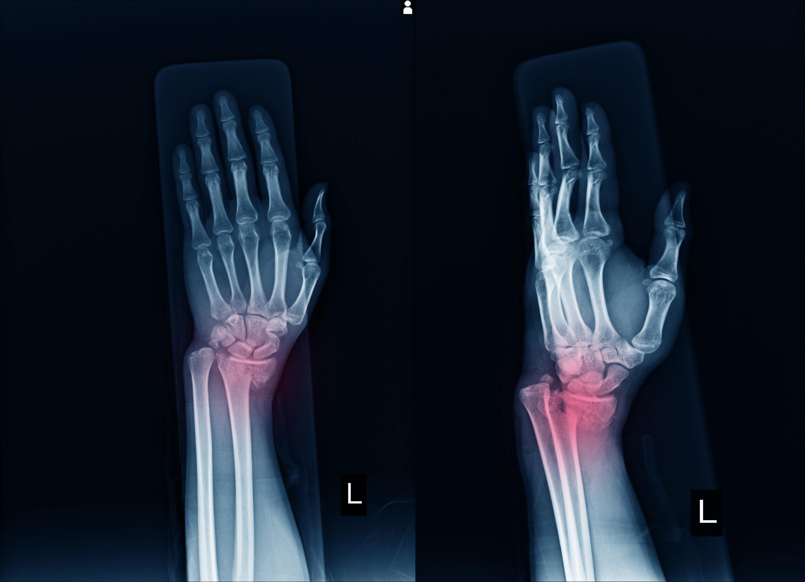 Центр здоров'я Solard - Все про артрити та артрози - 3