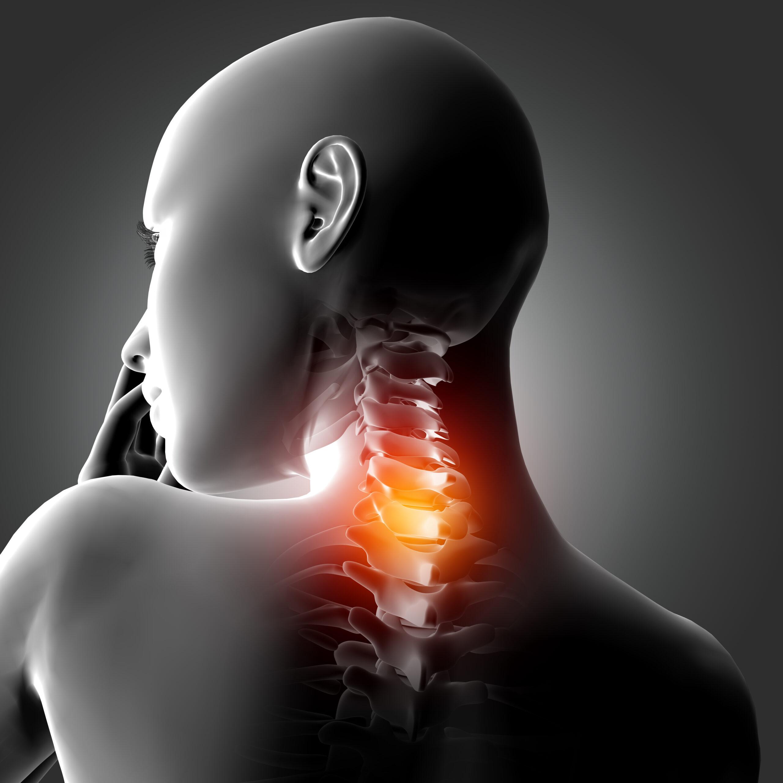 Центр здоров'я Solard - Боль в шее - 3