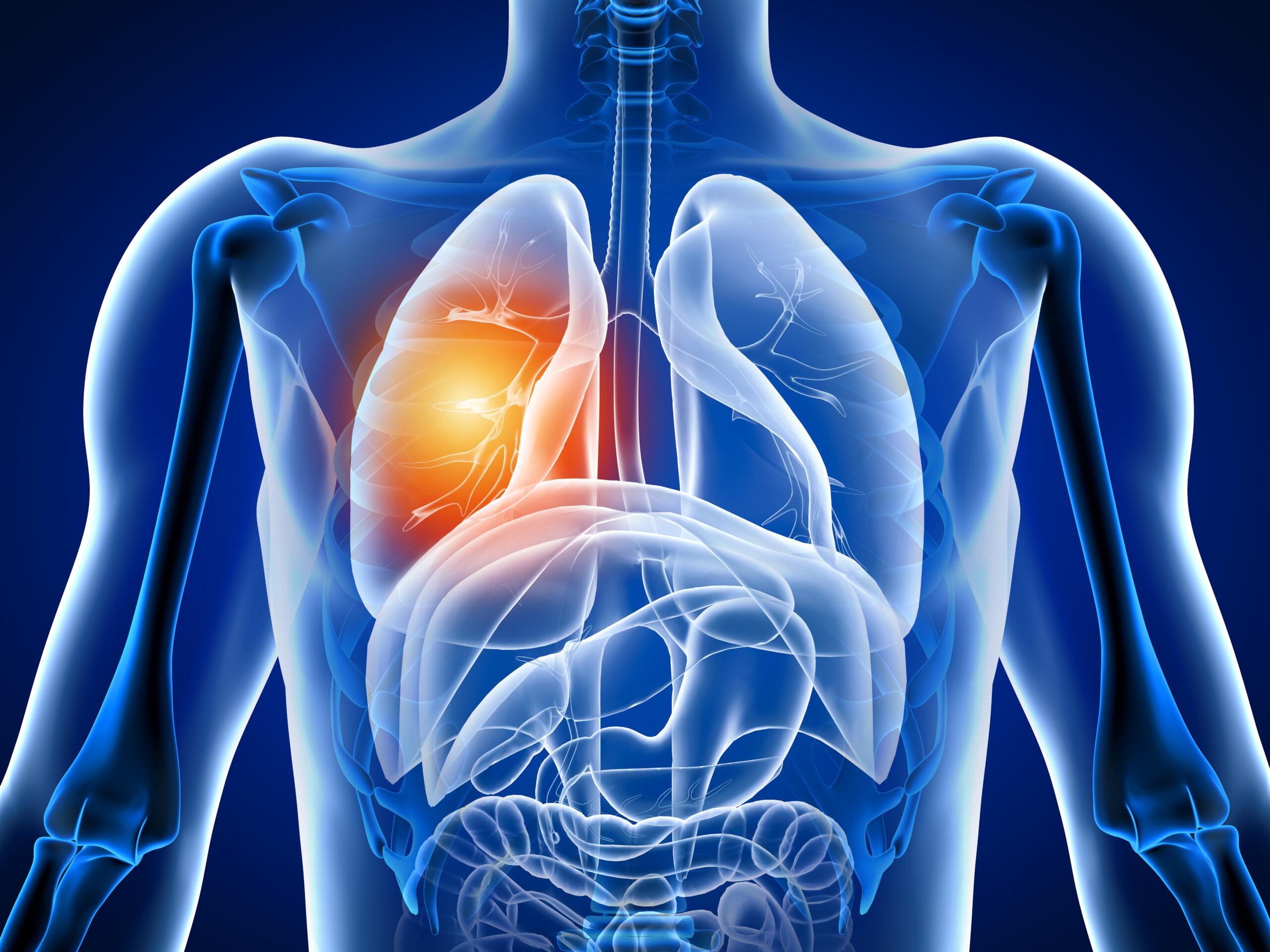 Центр здоров'я Solard - Біль в грудному відділі - 3