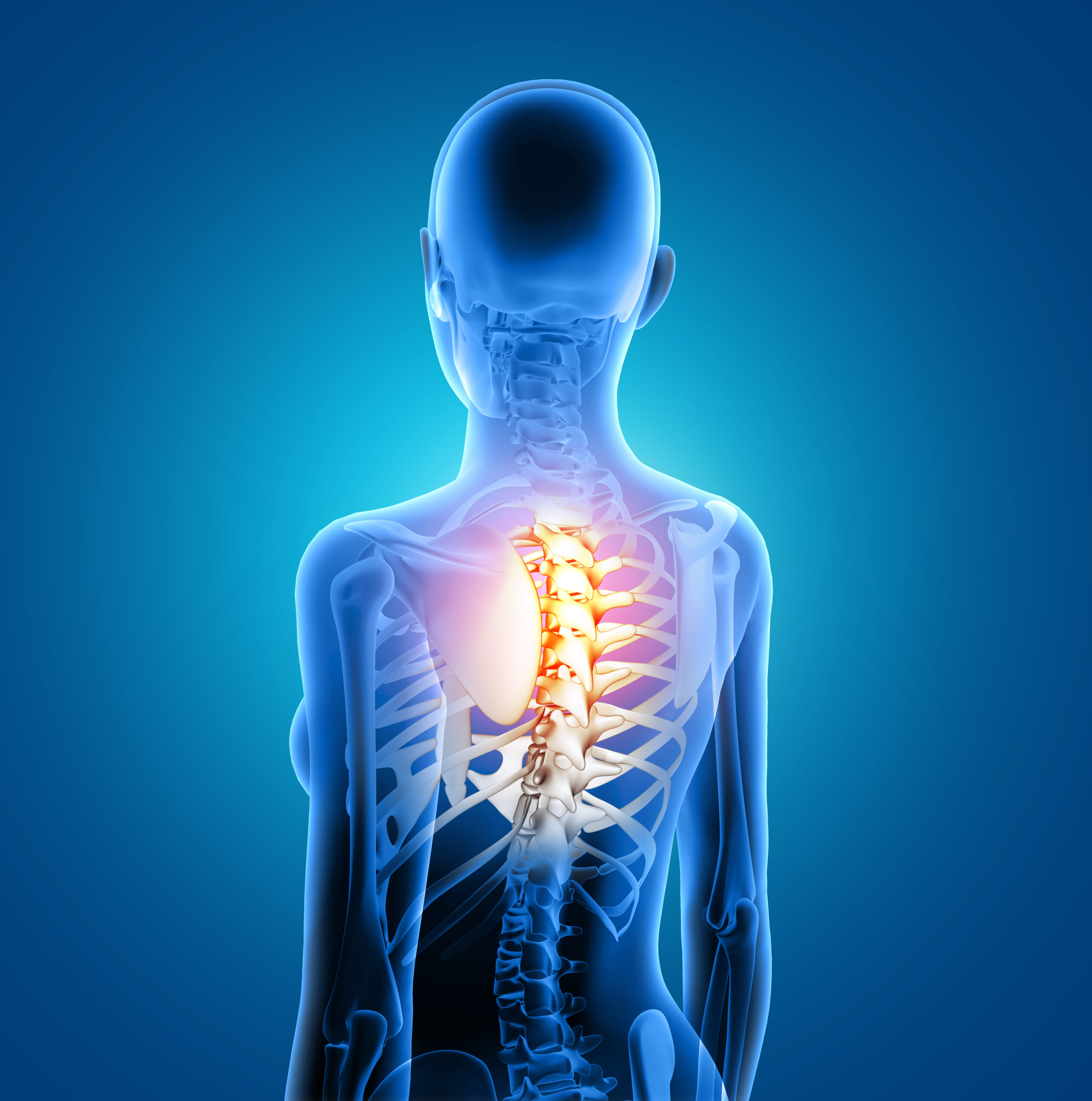 Центр здоров'я Solard - Боль в грудном отделе - 1