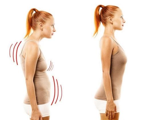 Центр здоров'я Solard - Три приводи випрямити згорблену спину - 3