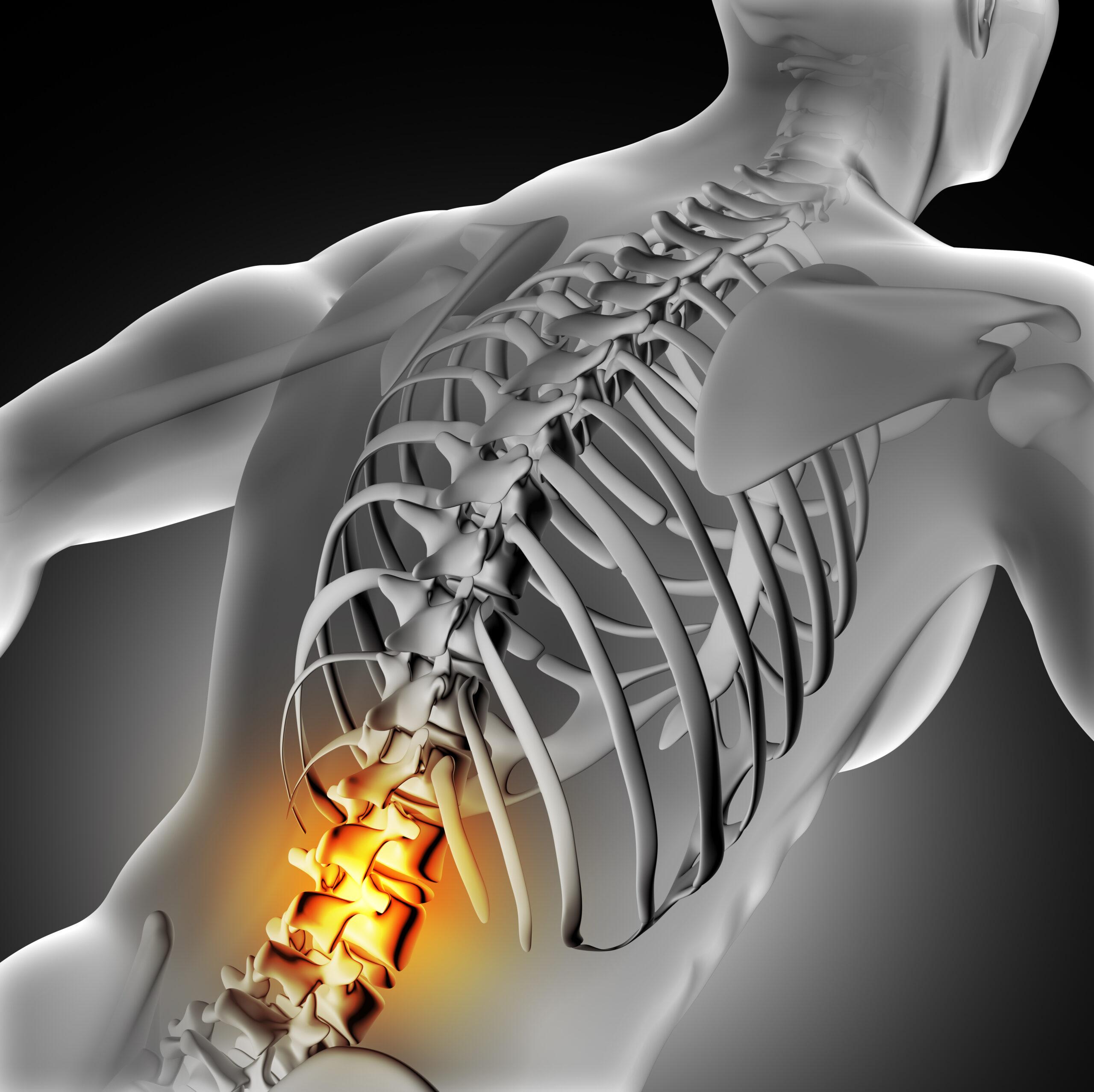 Центр здоров'я Solard - Боль в пояснице - 3